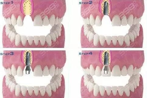 种植牙种植过程示意图