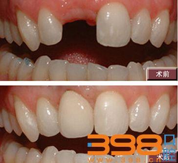 北京圣贝口腔医院种植牙对比案例图