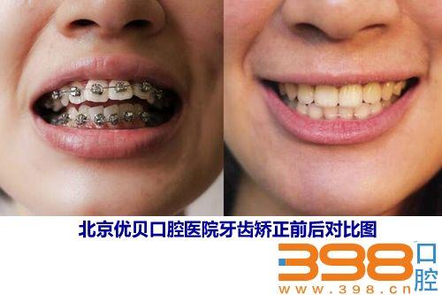 北京优贝口腔医院牙齿矫正前后对比图