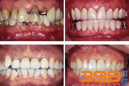 北京维恩口腔医院全瓷牙修复对比图