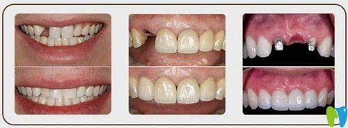 在上海口腔医院做韩国登腾纯钛种植牙多少钱一颗