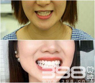 广州广大口腔冷光美白牙齿案例