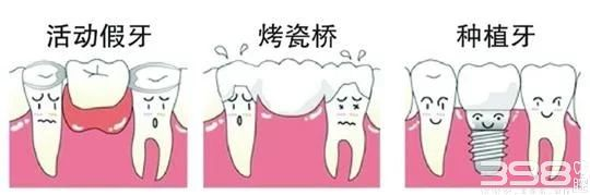活动义齿、种植牙、烤瓷牙