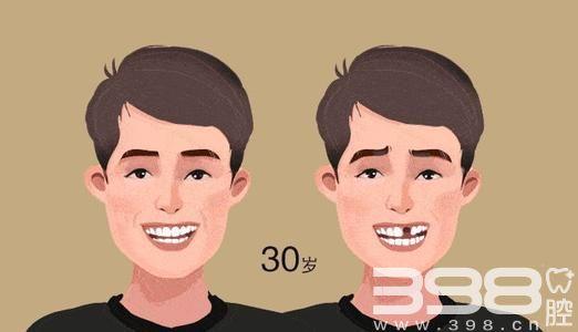 奥齿泰种植牙