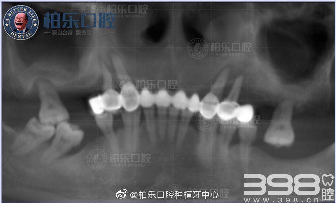种植牙术后