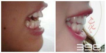 广州美莱口腔牙齿矫正案例