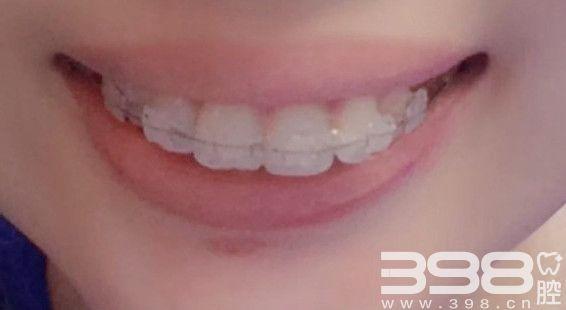 陶瓷牙套矫正方式