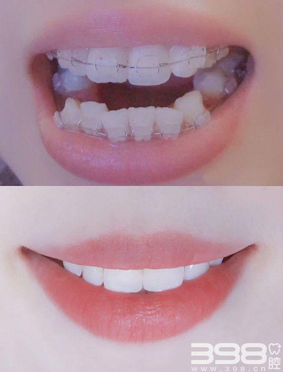 陶瓷牙套矫正前后对比