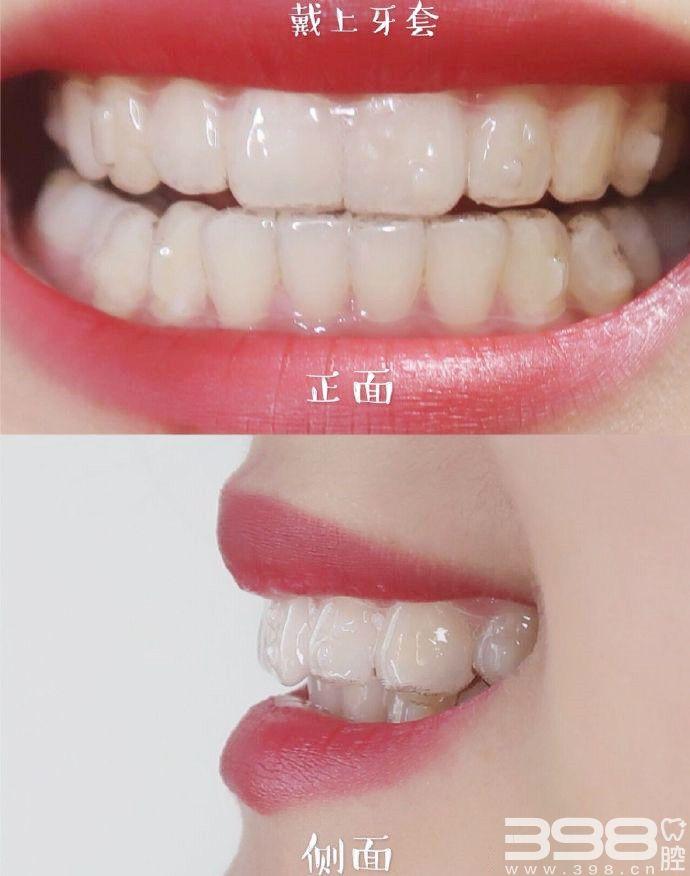 隐形牙套效果前后对比