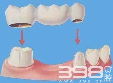 牙齿搭桥和种植哪个好,选择哪种牙齿修复方式更健康?