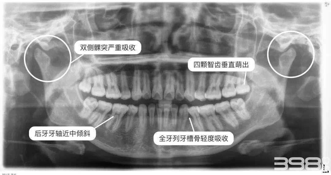 牙齿矫正牙根吸收的危害
