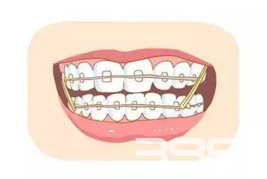 牙医为什么不矫正牙齿 原因竟是如此劲爆