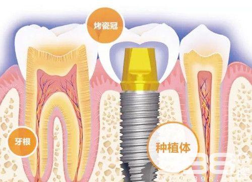 种植牙真的好吗?医生为什么不建议做种植牙?