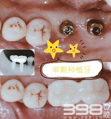 北京口腔医院种植牙多少钱?种植体品牌大全怎么选?
