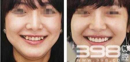 年人矫正牙齿效果怎么样