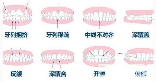 需要牙齿矫正的情况