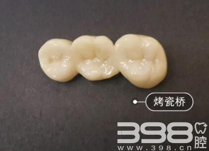牙医不建议亲属种牙 我也好后悔拔了三个烂牙根