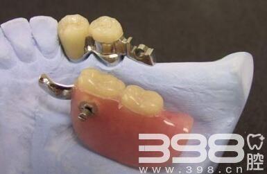 无挂钩假牙费用是多少?吸附性义齿真的那么好吗?