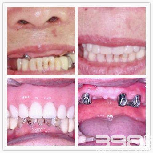 康贝佳口腔4颗半口种植牙图片