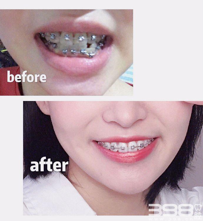 牙齿矫正前后对比