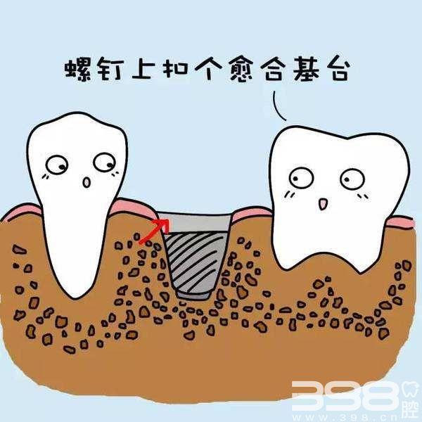 种植牙治疗过程示意图