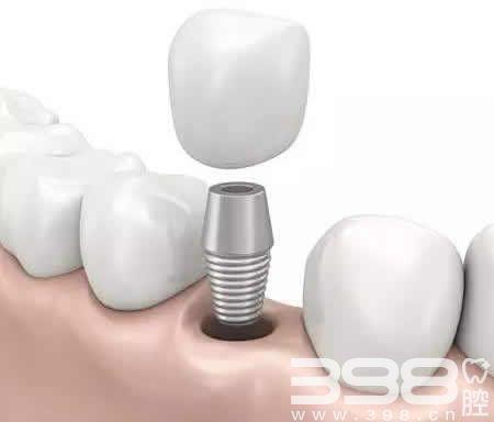昆明种植牙价格表 来康康昆明种植牙板扎医院排名