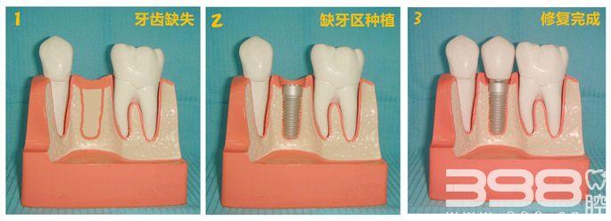 种植牙修复过程
