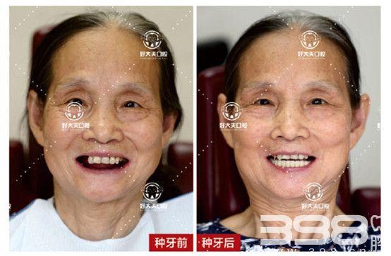 广州好大夫种植案例