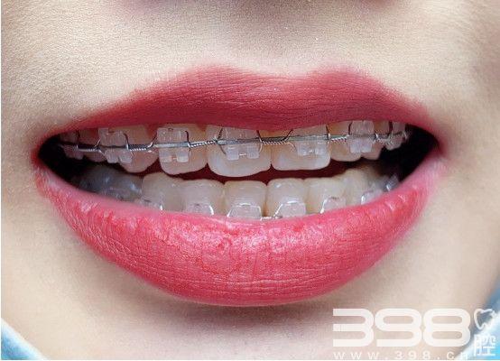 27岁女孩在上海维乐口腔半隐形矫正案例和心得