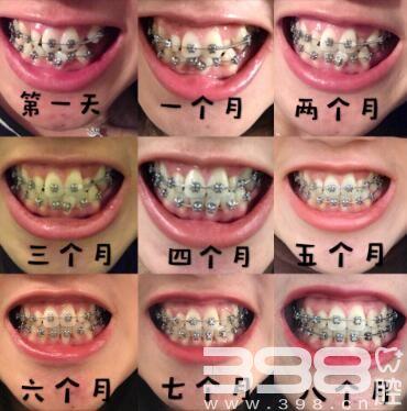 北京牙齿矫正优惠尽在壹加壹口腔,隐适美低至3万多