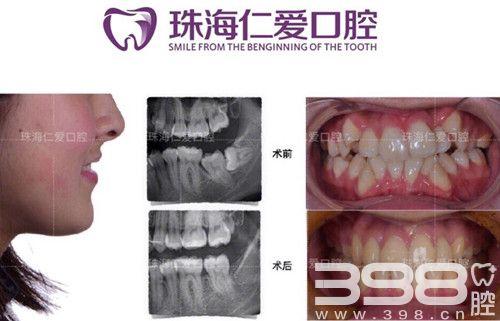 珠海牙齿矫正要看仁爱口腔医院的案例