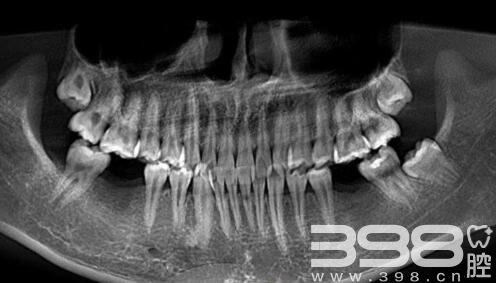 长沙中诺口腔医院回访:22岁换掉一口牙齿需要多少钱?