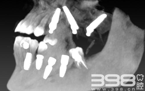 洛阳拜博口腔谢良雄院长穿翼板种植牙案例 让咬合功能恢复