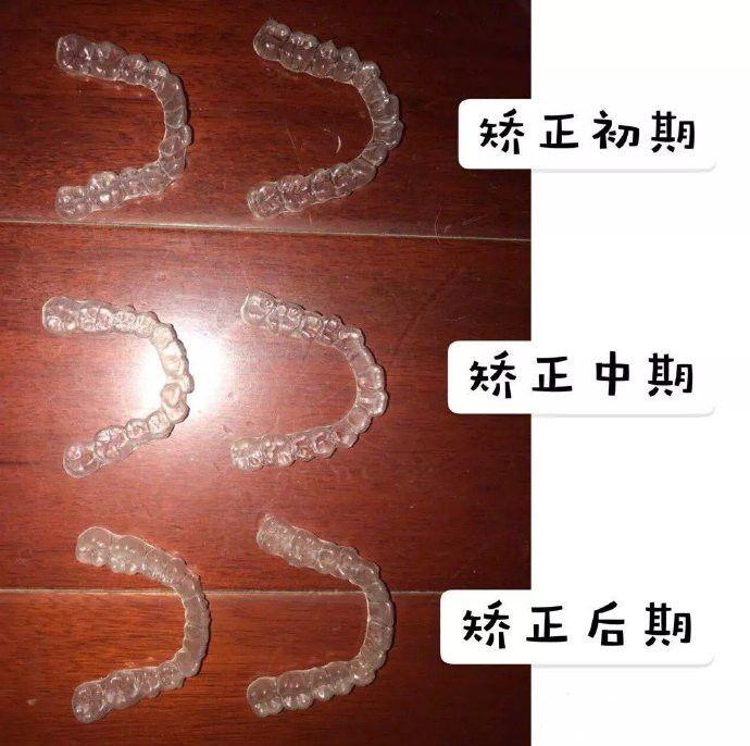 上海鼎植口腔隐适美矫正怎么样价格贵吗?真人案例告诉你