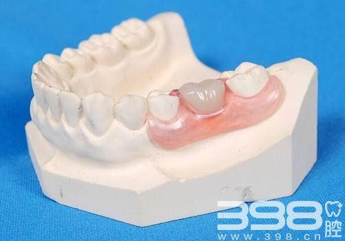 牙齿修复困扰:拔牙后镶牙的<span style=