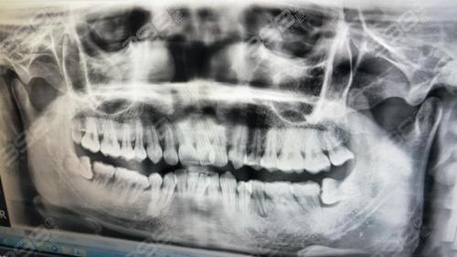 牙根短能矫正牙吗?做完牙齿矫正后会脱落 是正畸失败吗?