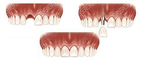 种植牙整个流程要多久?