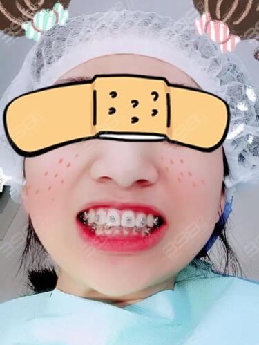 龅牙的烦恼:牙齿整齐但是嘴巴前凸怎么矫正?