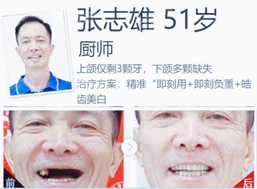 珠海种植牙哪家医院比较好?来看珠海仁爱口腔种植牙案例