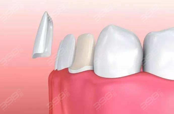 瓷贴面牙齿美白修复