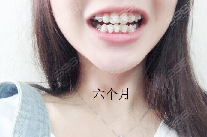 牙齿矫正需要注意事项