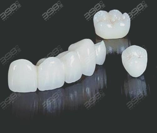 北京瑞鲨口腔医院种植牙冠