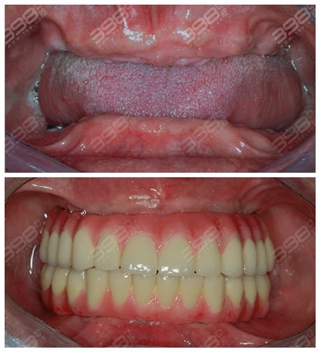 无牙颌种植牙对比案例图