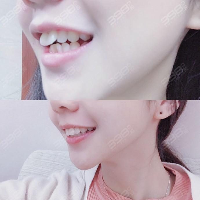 虎牙牙齿矫正案例对比