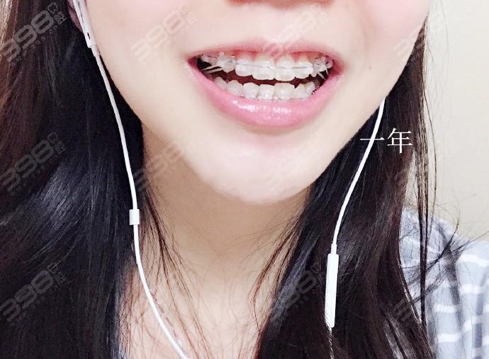 隐形牙齿矫正案例对比