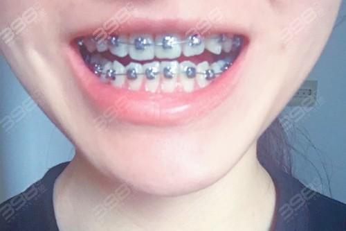 武汉德韩口腔医院怎么样?整牙十年后的感受反馈来一波