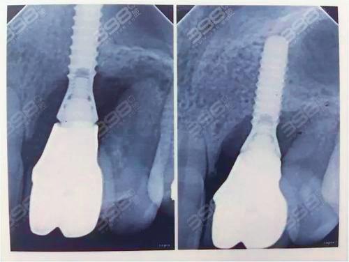 诺贝尔pmc种植体多少钱一颗 种植体与牙槽骨多久融合到一起
