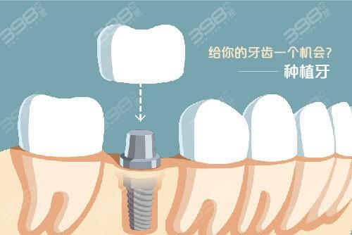 厦门种牙费用是多少?
