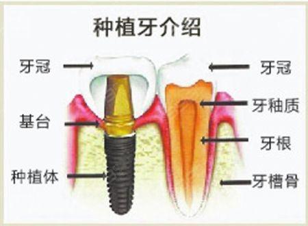 种植牙示意图