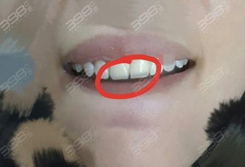 求北京烤瓷牙价格,哪里便宜?烤瓷牙一般多少钱一颗?